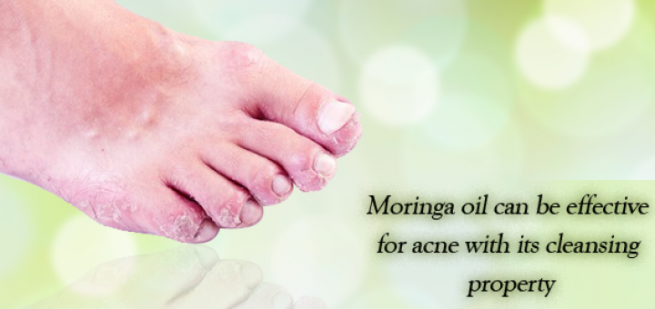 moringa oil for eczema