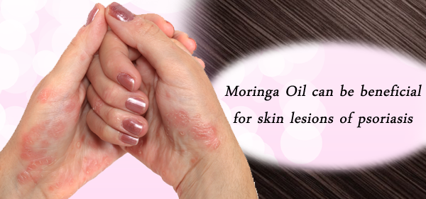 moringa for psoriasis