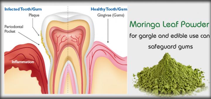 moringa for gum disease