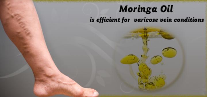 moringa for varicose veins